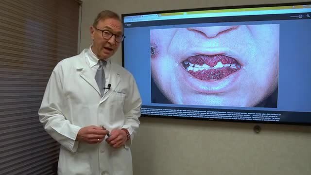 Rare Condition Causes Woman's Gums To Look Like Strawberries