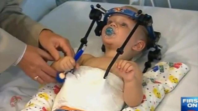 His Head Was Decapitated In A Car Crash, But Doctors Saved His Life And Reattached It!