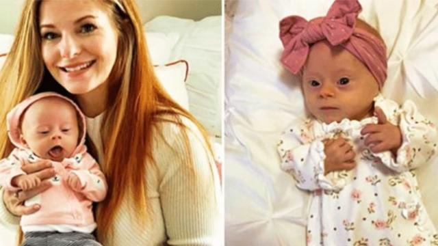'Termination, adoption or keep - three words that taught me how precious my baby was'